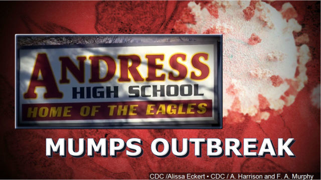 Three Cases Of Mumps Reported At Andress High School